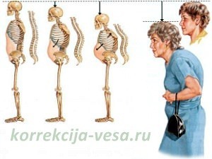 Остеопороз при недостатке кальция в организме